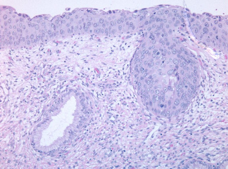 HPV 51 case 1 image 1, HE 100x