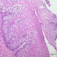 HPV 6 case 2 image 1, HE